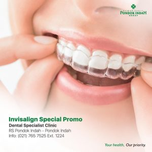 Invisalign Special Promo RS Pondok Indah