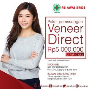 Paket Veneer Direct