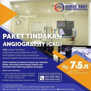 Promo Paket Tindakan Angiografi