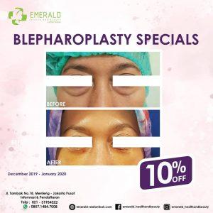 Diskon 10% Blepharoplasty (operasi kelopak mata) RSIA Tambak