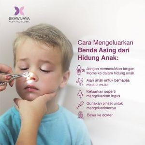 Cara Mengeluarkan Benda Asing Dari Hidung Anak
